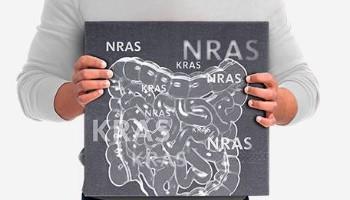 OncoBEAM™ RAS CRC Kit