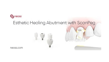 ScanPeg with Esthetic Healing Abutments